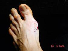 Fußchirurgie