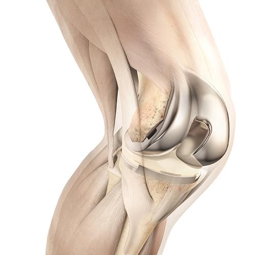 Knieprothetik - Gelenksersatz